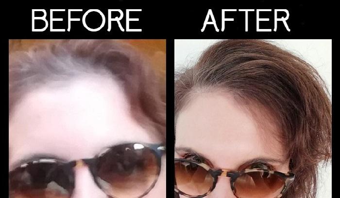 Prima e dopo trattamento Pantogar recensione